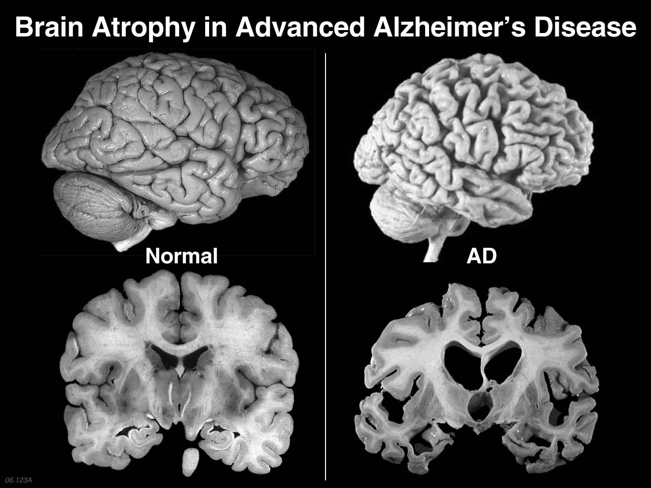brain dysfunction Abstract from epidemiological studies it is known that diabetes patients display increased risk of developing dementia moreover, cognitive impairment and alzheimer's disease (ad) are also accompanied by impaired glucose homeostasis and insulin signalling.