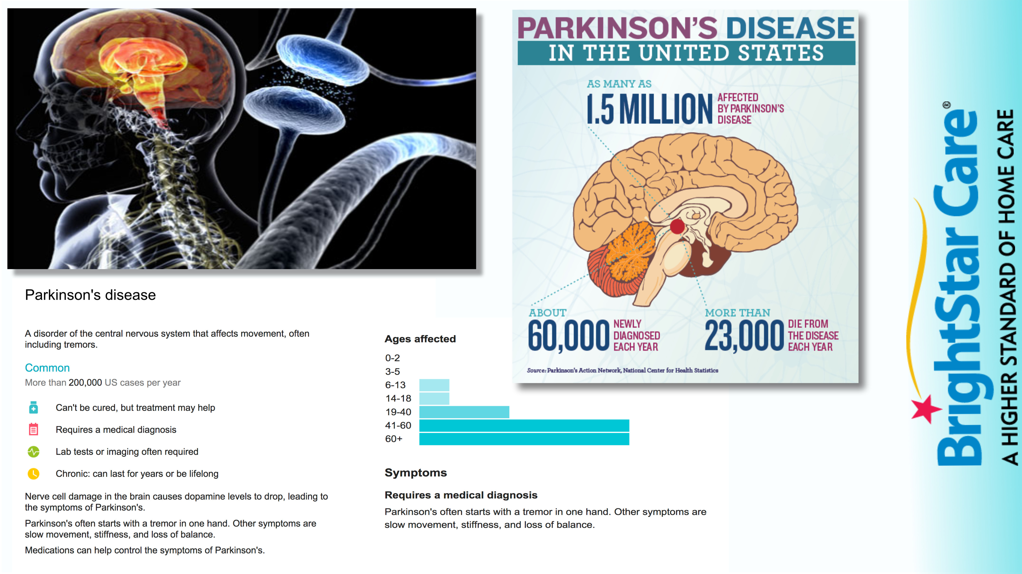 Facts about Parkinsons Disease in Bucks County PA